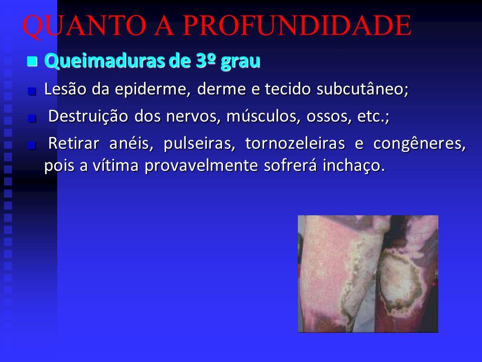 QUANTO A PROFUNDIDADE Queimaduras de 2º grau Queimaduras de 2º grau Lesão da epiderme e derme; Lesão da epiderme e derme; Formação de bolhas; Formação
