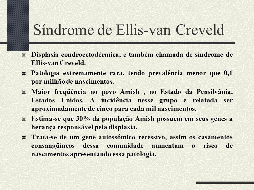 Síndrome de Ellis-van Creveld Displasia condroectodérmica, é também chamada de síndrome de Ellis-van Creveld. Patologia extremamente rara, tendo preva