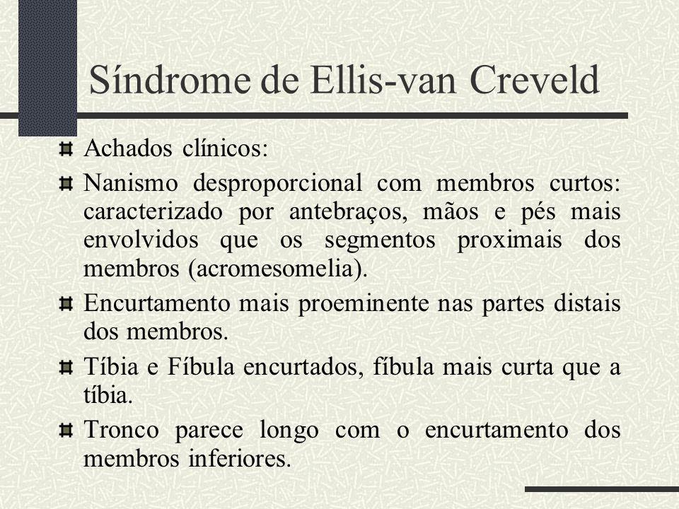Achados clínicos: Nanismo desproporcional com membros curtos: caracterizado por antebraços, mãos e pés mais envolvidos que os segmentos proximais dos