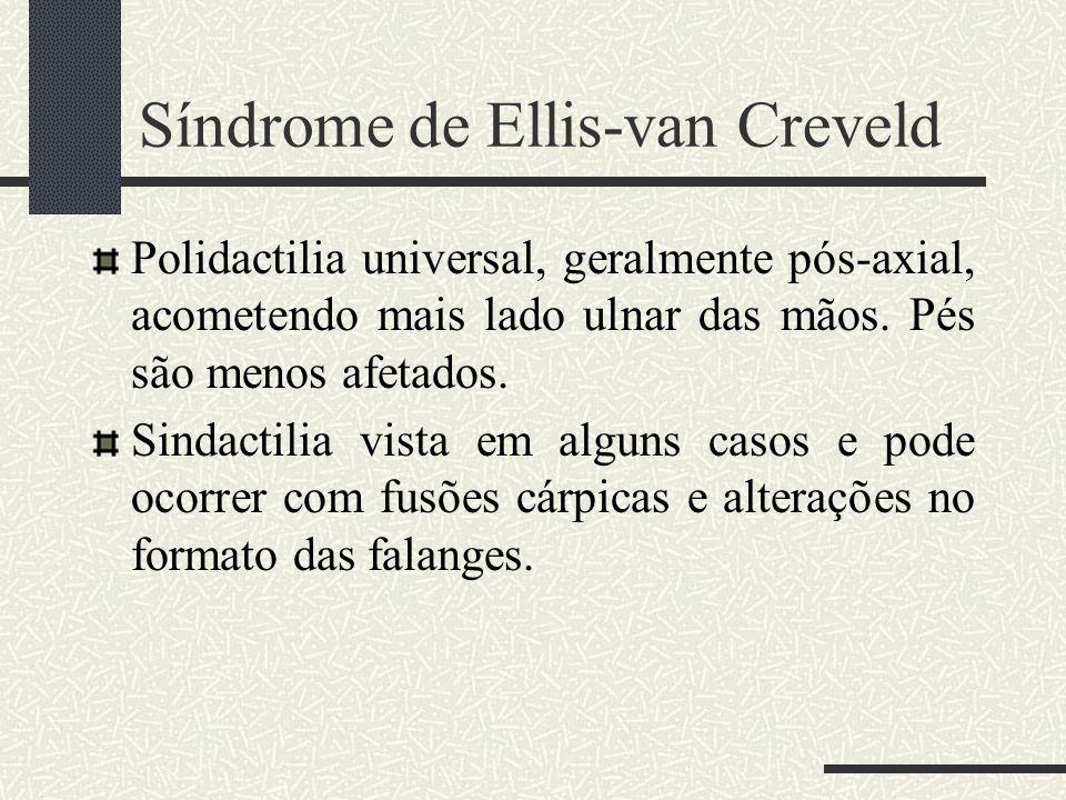 Polidactilia universal, geralmente pós-axial, acometendo mais lado ulnar das mãos. Pés são menos afetados. Sindactilia vista em alguns casos e pode oc