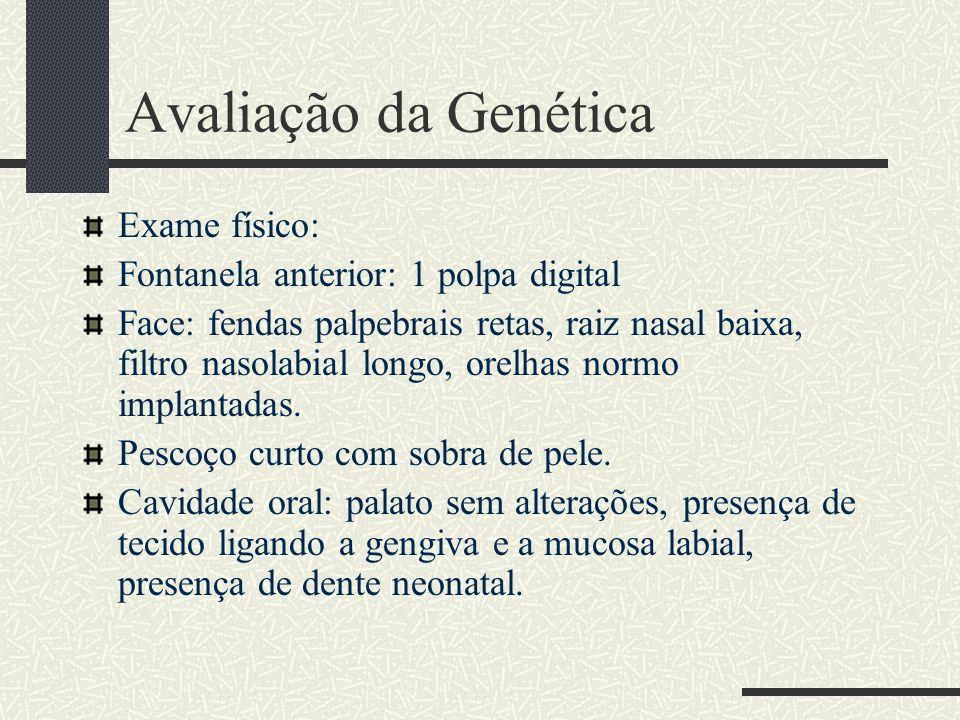 Avaliação da Genética Exame físico: Fontanela anterior: 1 polpa digital Face: fendas palpebrais retas, raiz nasal baixa, filtro nasolabial longo, orel
