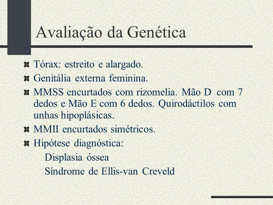 Avaliação da Genética Tórax: estreito e alargado. Genitália externa feminina. MMSS encurtados com rizomelia. Mão D com 7 dedos e Mão E com 6 dedos. Qu