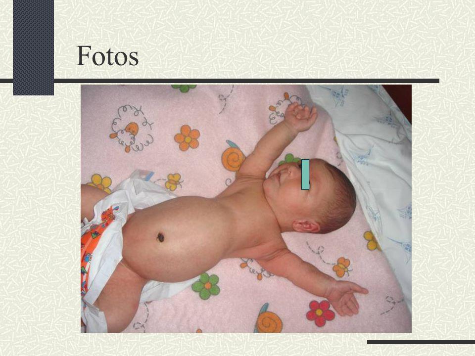 Bibliografia Revista Brasileira de Ortopedia Junho 2003 Síndromes de Malformações Congênitas 3a edição.