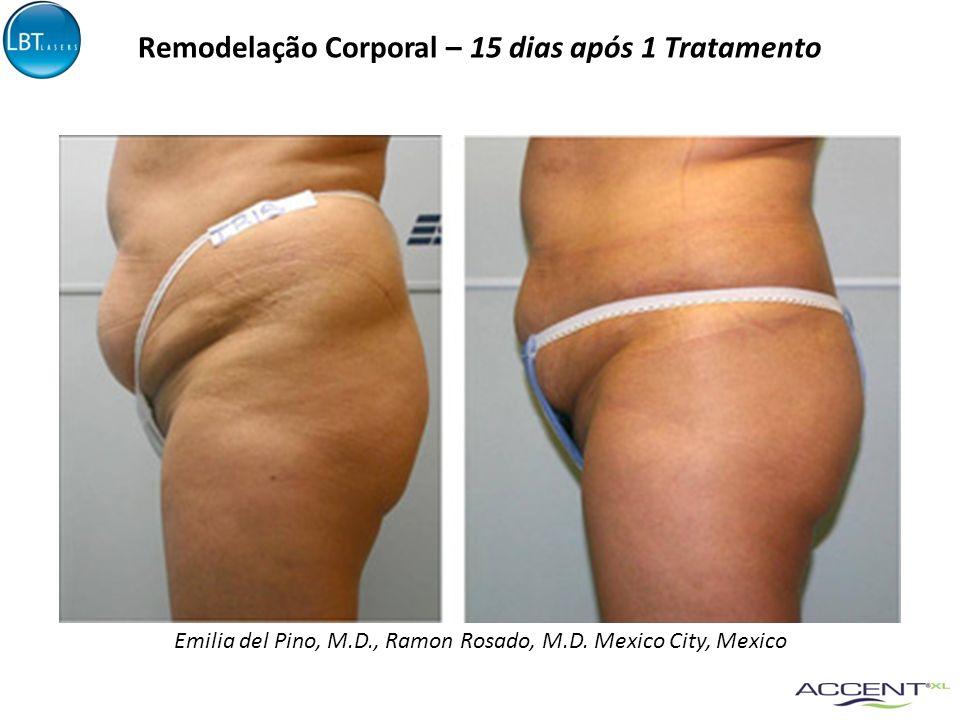 Emilia del Pino, M.D., Ramon Rosado, M.D. Mexico City, Mexico Remodelação Corporal – 15 dias após 1 Tratamento