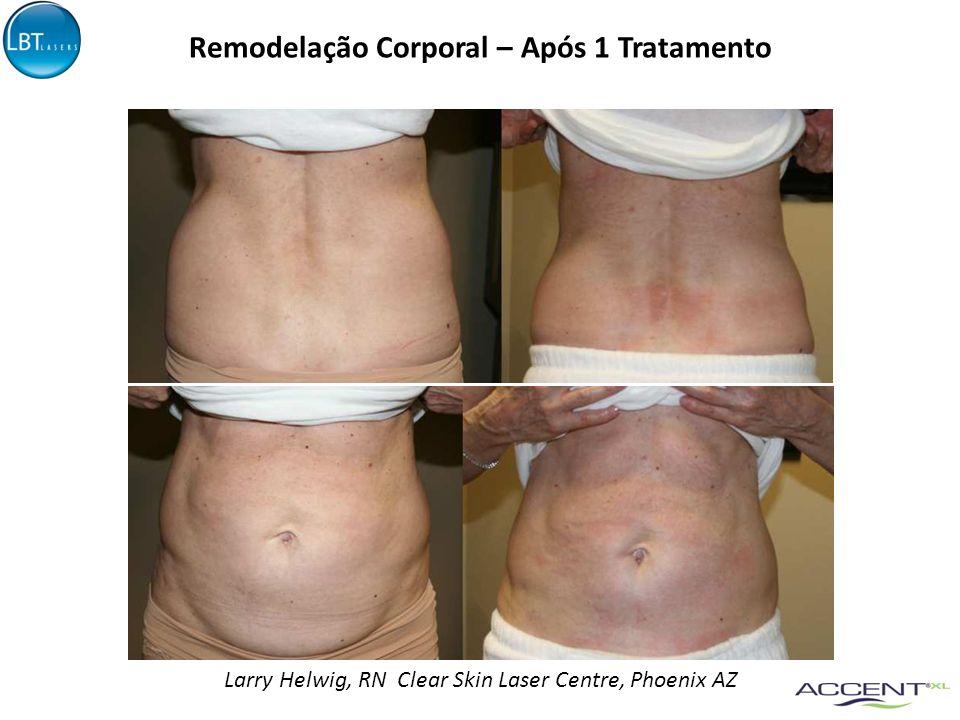 Comparativo – Após 1 Tratamento Dr. Michael Mall, New Image Laser Center, Las Vegas