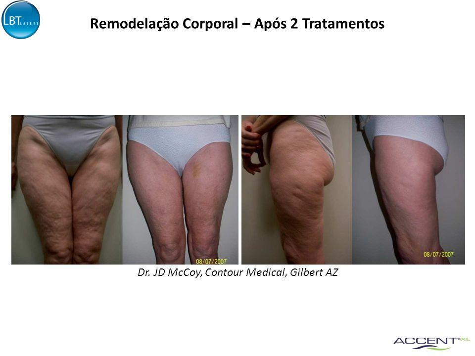 Patrizio Bertola, M.D. Vercelli, Italy Remodelação Corporal – Após 5 Tratamentos