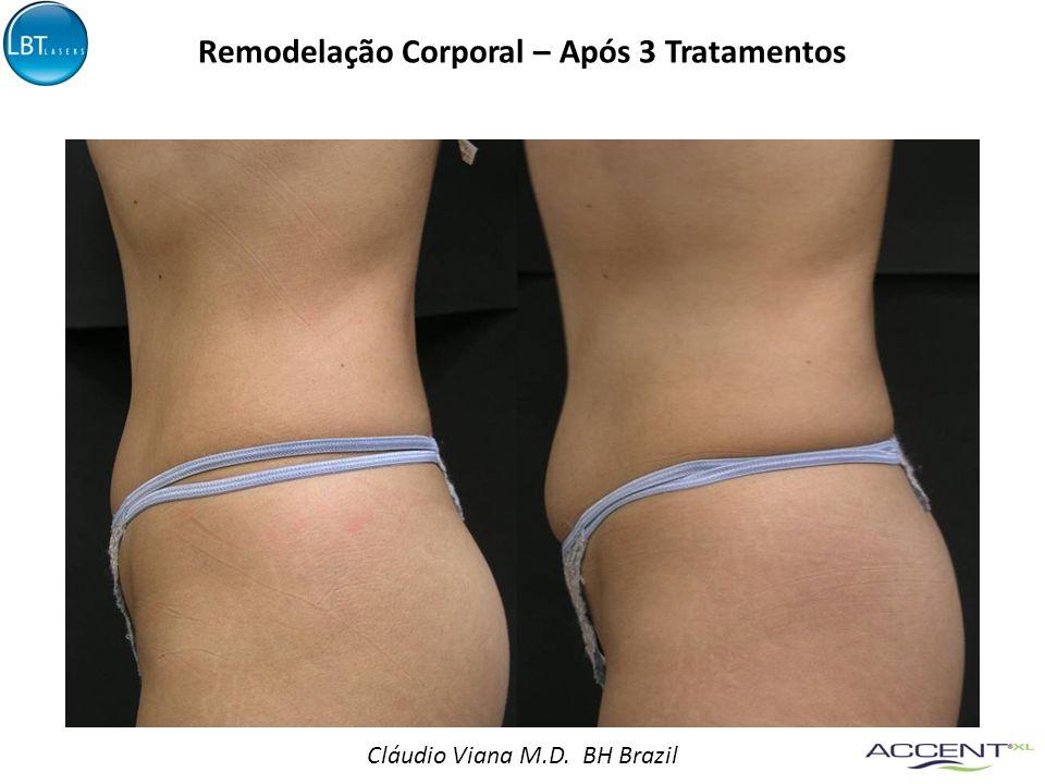 Cláudio Viana M.D. BH Brazil Remodelação Corporal – Após 3 Tratamentos