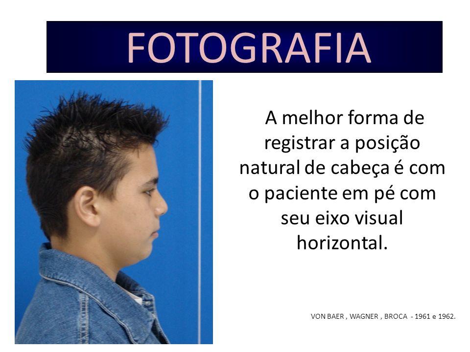 FOTOGRAFIA A melhor forma de registrar a posição natural de cabeça é com o paciente em pé com seu eixo visual horizontal. VON BAER, WAGNER, BROCA - 19