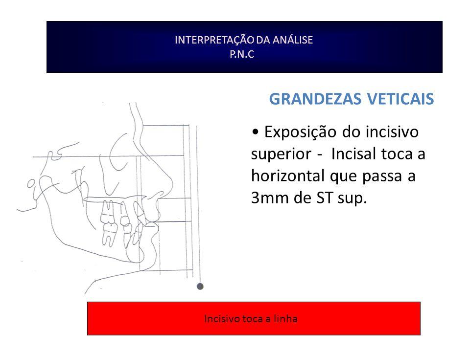 INTERPRETAÇÃO DA ANÁLISE P.N.C GRANDEZAS VETICAIS Exposição do incisivo superior - Incisal toca a horizontal que passa a 3mm de ST sup. Incisivo toca