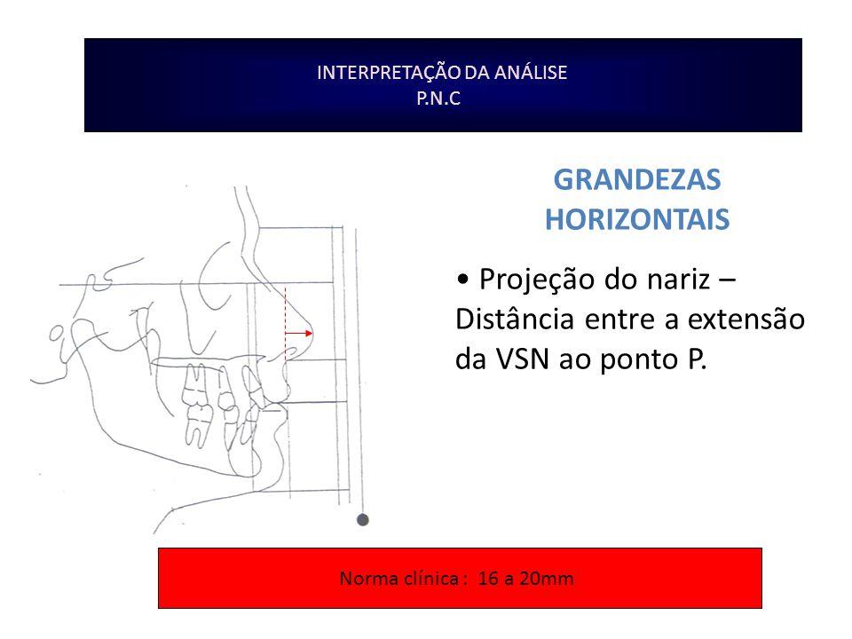INTERPRETAÇÃO DA ANÁLISE P.N.C GRANDEZAS HORIZONTAIS Projeção do nariz – Distância entre a extensão da VSN ao ponto P. Norma clínica : 16 a 20mm