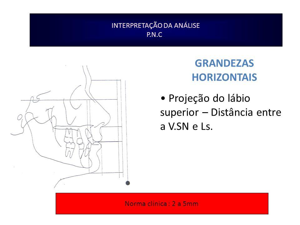 INTERPRETAÇÃO DA ANÁLISE P.N.C GRANDEZAS HORIZONTAIS Projeção do lábio superior – Distância entre a V.SN e Ls. Norma clínica : 2 a 5mm