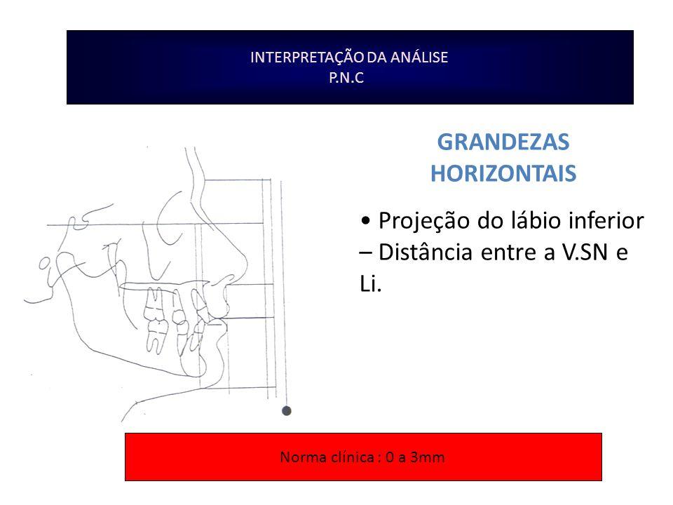 INTERPRETAÇÃO DA ANÁLISE P.N.C GRANDEZAS HORIZONTAIS Projeção do lábio inferior – Distância entre a V.SN e Li. Norma clínica : 0 a 3mm