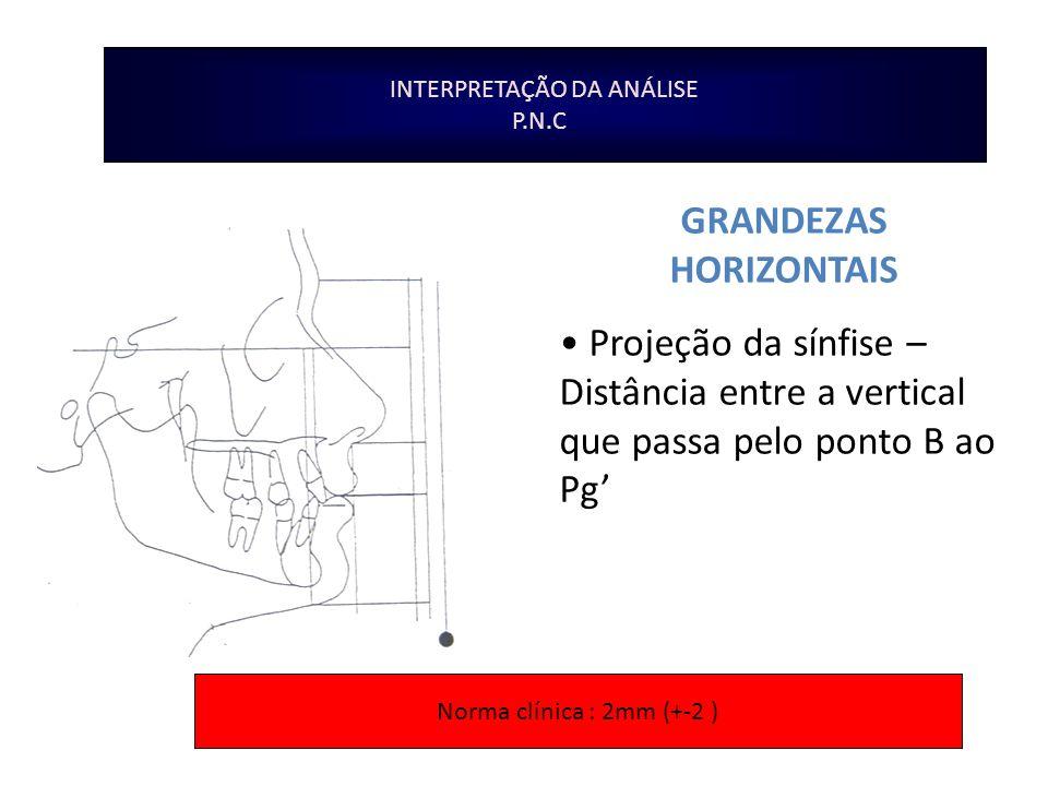 INTERPRETAÇÃO DA ANÁLISE P.N.C GRANDEZAS HORIZONTAIS Projeção da sínfise – Distância entre a vertical que passa pelo ponto B ao Pg Norma clínica : 2mm