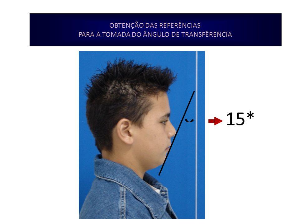 INTERPRETAÇÃO DA ANÁLISE P.N.C GRANDEZAS VETICAIS Exposição do incisivo superior - Incisal toca a horizontal que passa a 3mm de ST sup.