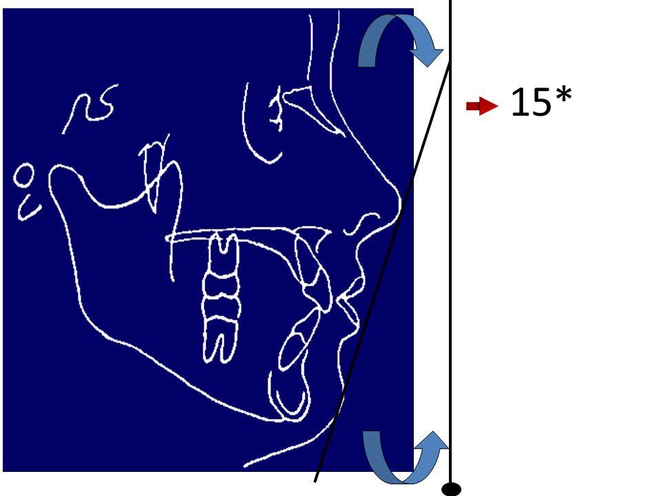 INTERPRETAÇÃO DA ANÁLISE P.N.C GRANDEZAS HORIZONTAIS Projeção do nariz – Distância entre a extensão da VSN ao ponto P.