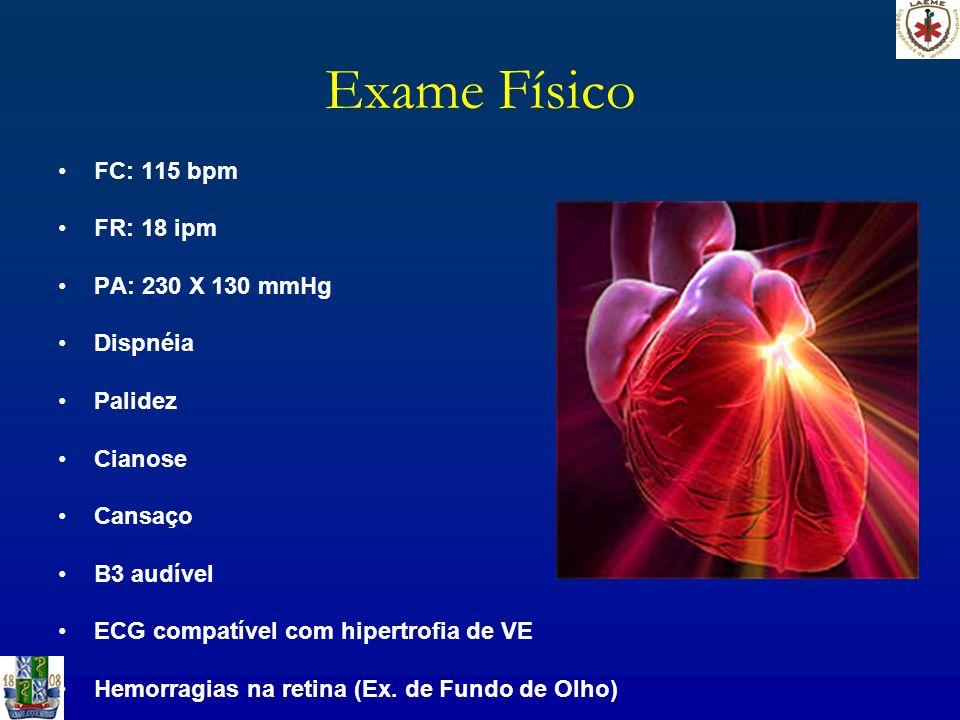 Exame Físico FC: 115 bpm FR: 18 ipm PA: 230 X 130 mmHg Dispnéia Palidez Cianose Cansaço B3 audível ECG compatível com hipertrofia de VE Hemorragias na