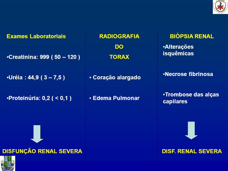 Exames Laboratoriais Creatinina: 999 ( 50 – 120 ) Uréia : 44,9 ( 3 – 7,5 ) Proteinúria: 0,2 ( < 0,1 ) DISFUNÇÃO RENAL SEVERA RADIOGRAFIA DO TORAX Cora