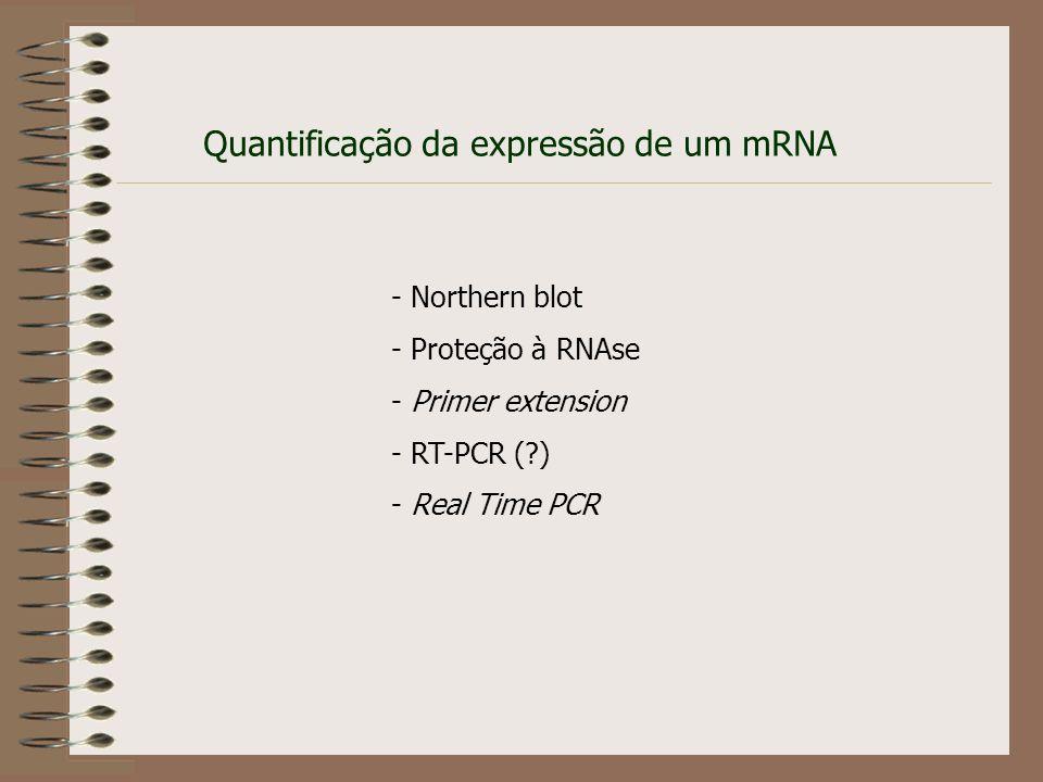 RT-PCR - RT + RT