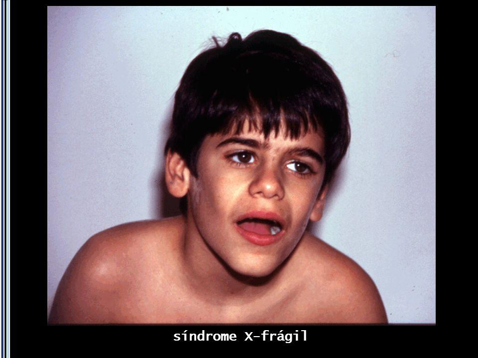 síndrome X-frágil