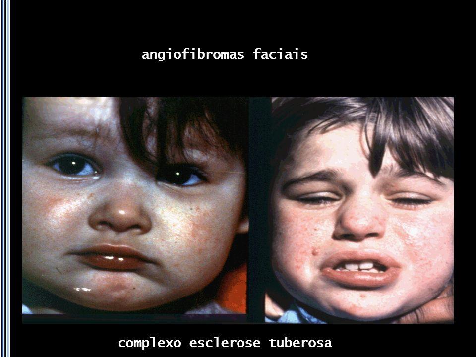 angiofibromas faciais complexo esclerose tuberosa