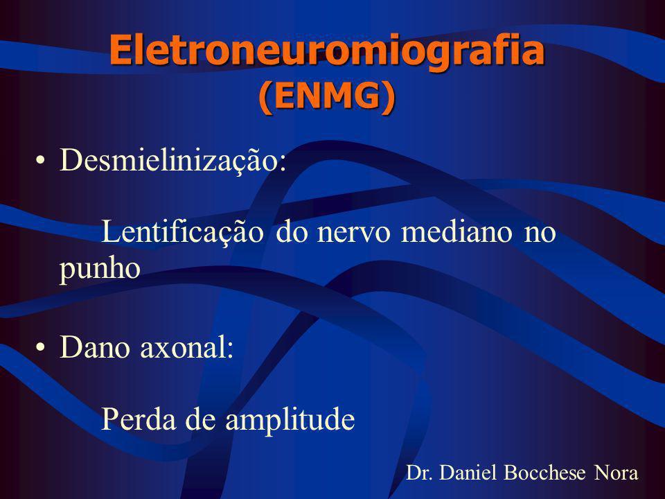 Dr. Daniel Bocchese Nora Eletroneuromiografia (ENMG) Desmielinização: Lentificação do nervo mediano no punho Dano axonal: Perda de amplitude