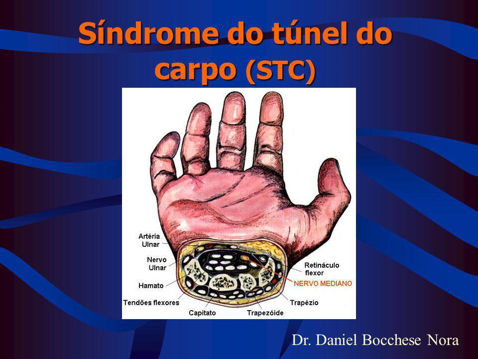 Dr. Daniel Bocchese Nora Síndrome do túnel do carpo (STC)