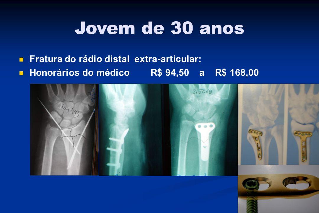 Jovem de 30 anos Fratura do rádio distal extra-articular: Honorários do médico R$ 94,50 a R$ 168,00