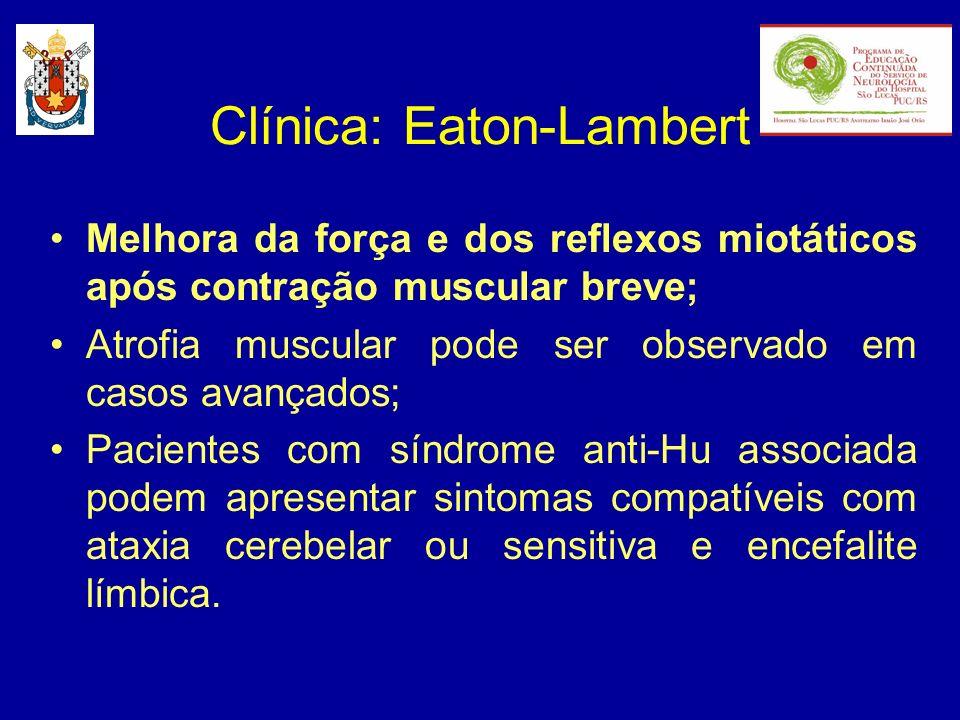 Tratamento: Eaton-Lambert Tratamento do tumor Piridostigmina: 60 mg 4-5 x/dia 3,4-diaminopiridina: 20 mg 3 x/dia (até 80 mg/dia) Agentes Imunossupressores: - corticóide- azatioprina Imunoglobulina Intravenosa Plasmaferese