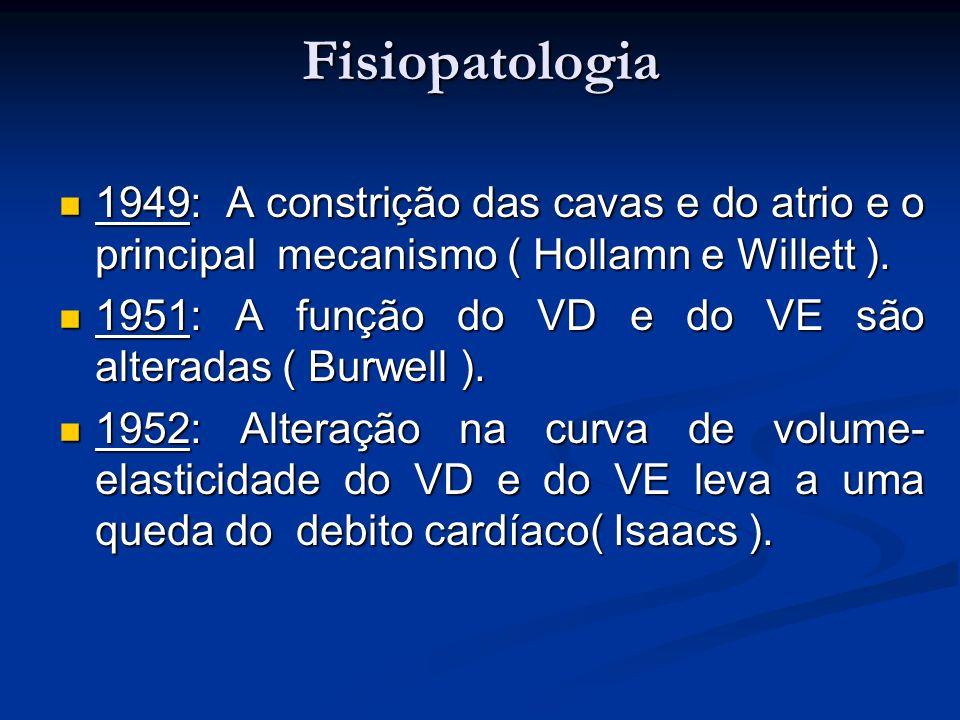 1949: A constrição das cavas e do atrio e o principal mecanismo ( Hollamn e Willett ). 1949: A constrição das cavas e do atrio e o principal mecanismo