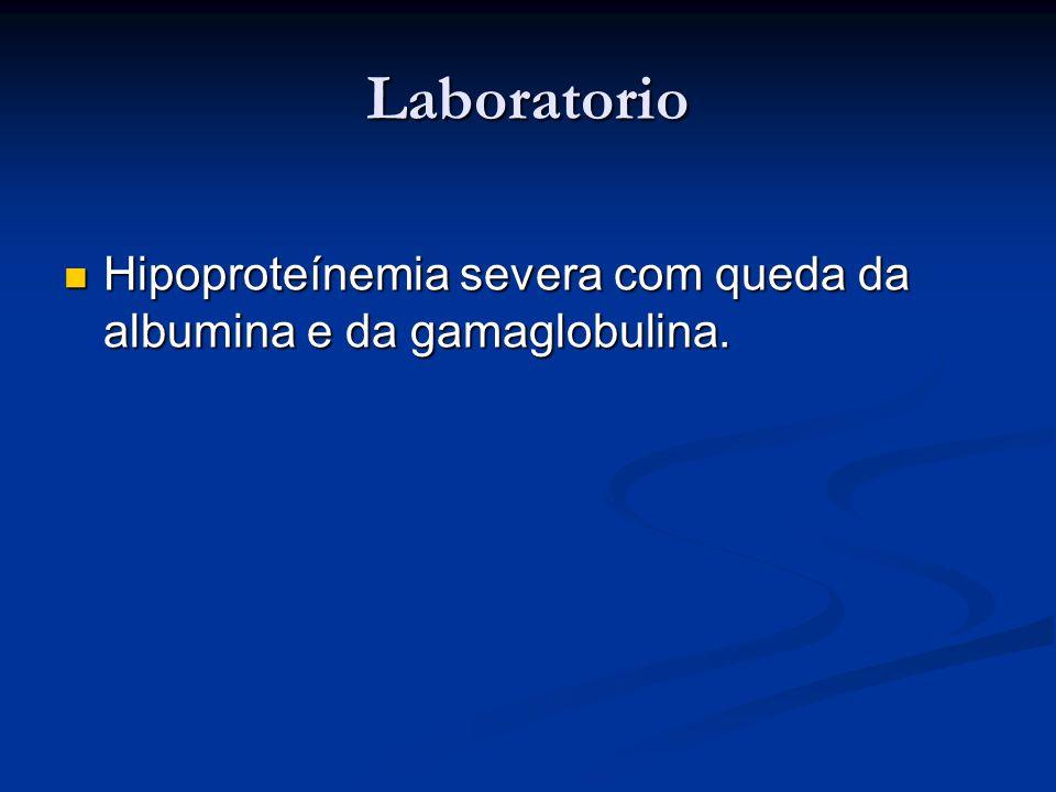 Laboratorio Hipoproteínemia severa com queda da albumina e da gamaglobulina. Hipoproteínemia severa com queda da albumina e da gamaglobulina.