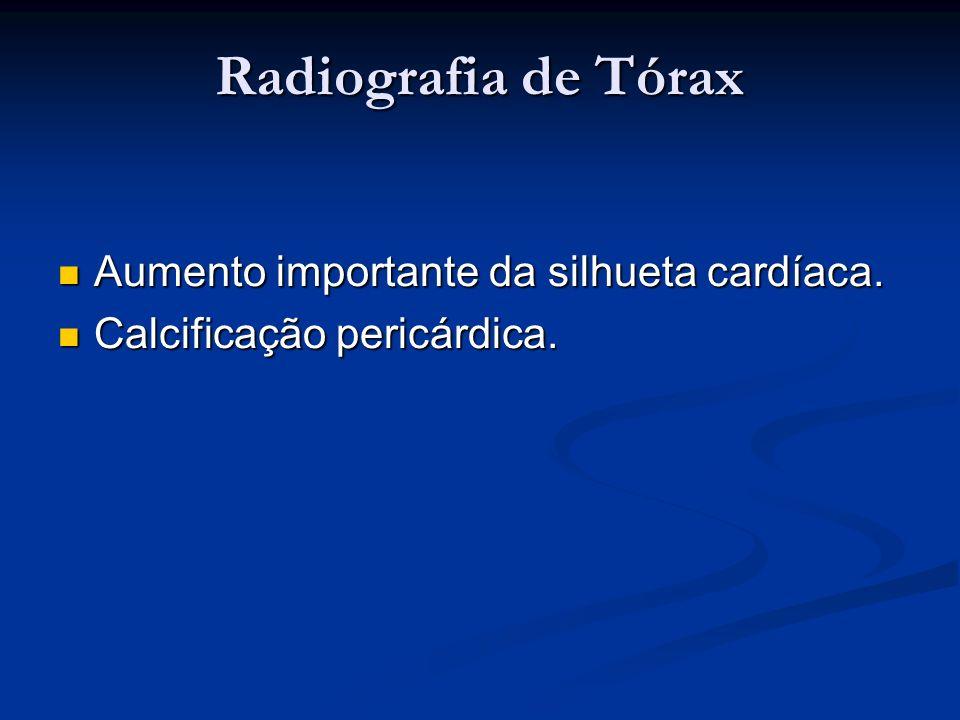 Radiografia de Tórax Aumento importante da silhueta cardíaca. Aumento importante da silhueta cardíaca. Calcificação pericárdica. Calcificação pericárd