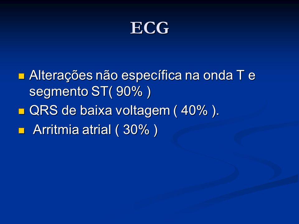 ECG Alterações não específica na onda T e segmento ST( 90% ) Alterações não específica na onda T e segmento ST( 90% ) QRS de baixa voltagem ( 40% ). Q