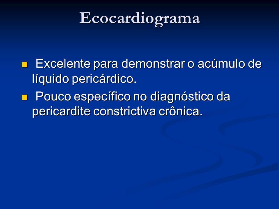Ecocardiograma Excelente para demonstrar o acúmulo de líquido pericárdico. Excelente para demonstrar o acúmulo de líquido pericárdico. Pouco específic