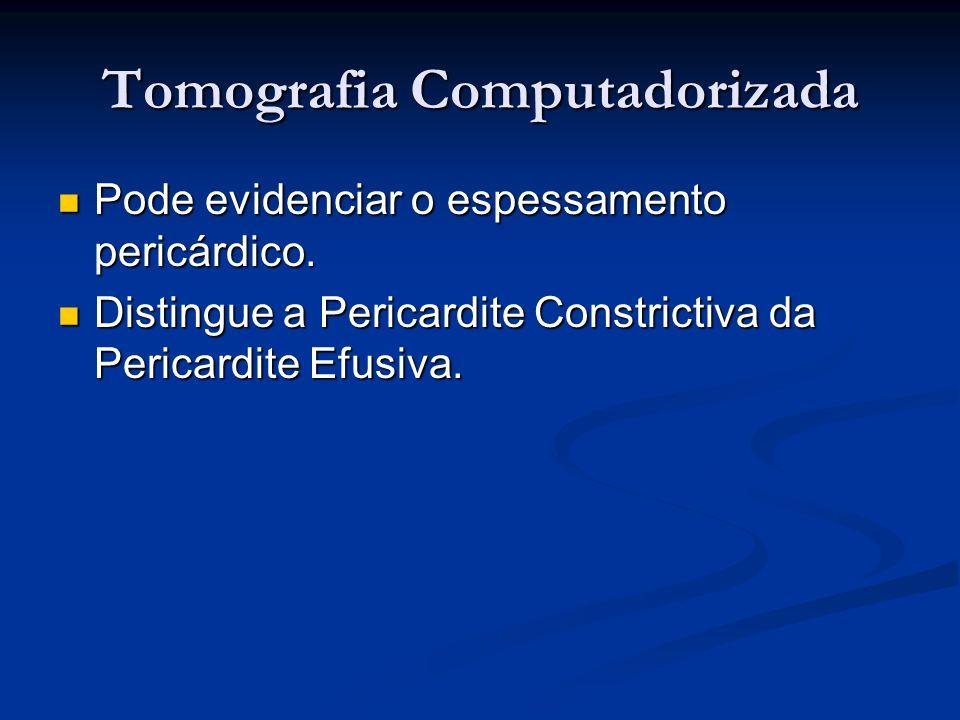 Tomografia Computadorizada Pode evidenciar o espessamento pericárdico. Pode evidenciar o espessamento pericárdico. Distingue a Pericardite Constrictiv