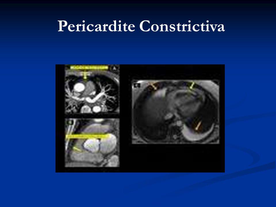 Pericardite Constrictiva