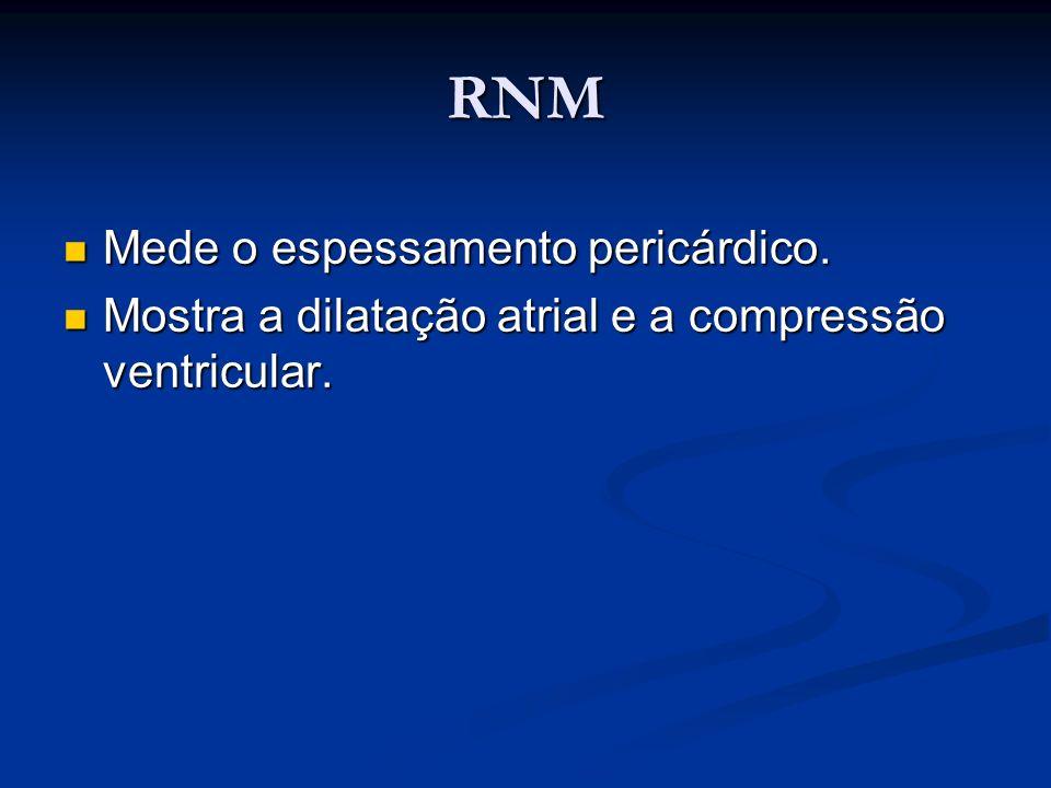 RNM Mede o espessamento pericárdico. Mede o espessamento pericárdico. Mostra a dilatação atrial e a compressão ventricular. Mostra a dilatação atrial