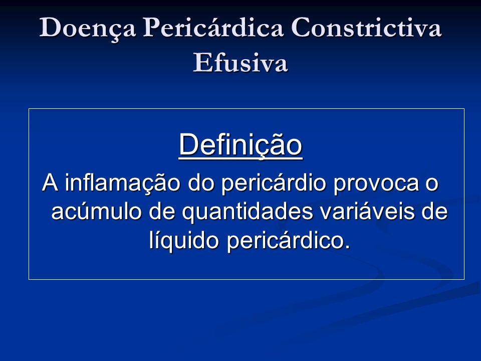 Doença Pericárdica Constrictiva Efusiva Definição A inflamação do pericárdio provoca o acúmulo de quantidades variáveis de líquido pericárdico.