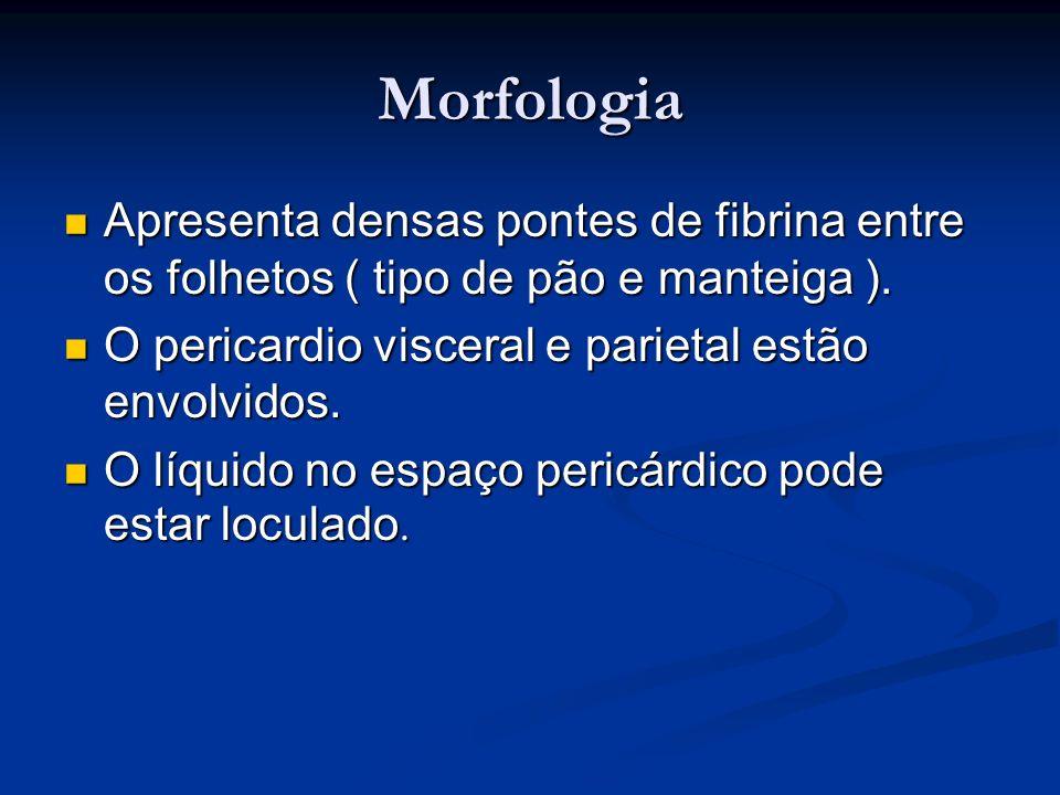 Morfologia Apresenta densas pontes de fibrina entre os folhetos ( tipo de pão e manteiga ). Apresenta densas pontes de fibrina entre os folhetos ( tip