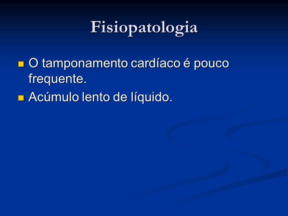 Fisiopatologia O tamponamento cardíaco é pouco frequente. O tamponamento cardíaco é pouco frequente. Acúmulo lento de líquido. Acúmulo lento de líquid
