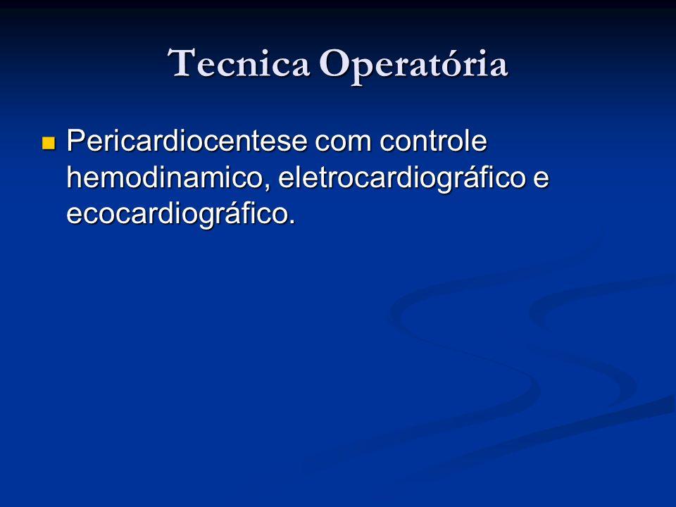 Tecnica Operatória Pericardiocentese com controle hemodinamico, eletrocardiográfico e ecocardiográfico. Pericardiocentese com controle hemodinamico, e