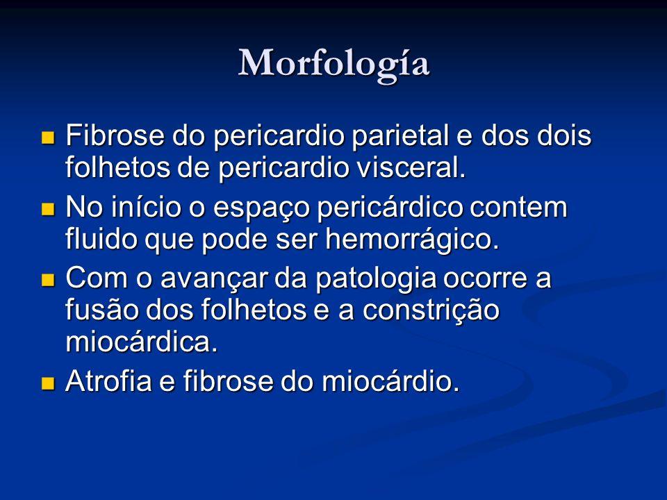 Morfología Fibrose do pericardio parietal e dos dois folhetos de pericardio visceral. Fibrose do pericardio parietal e dos dois folhetos de pericardio