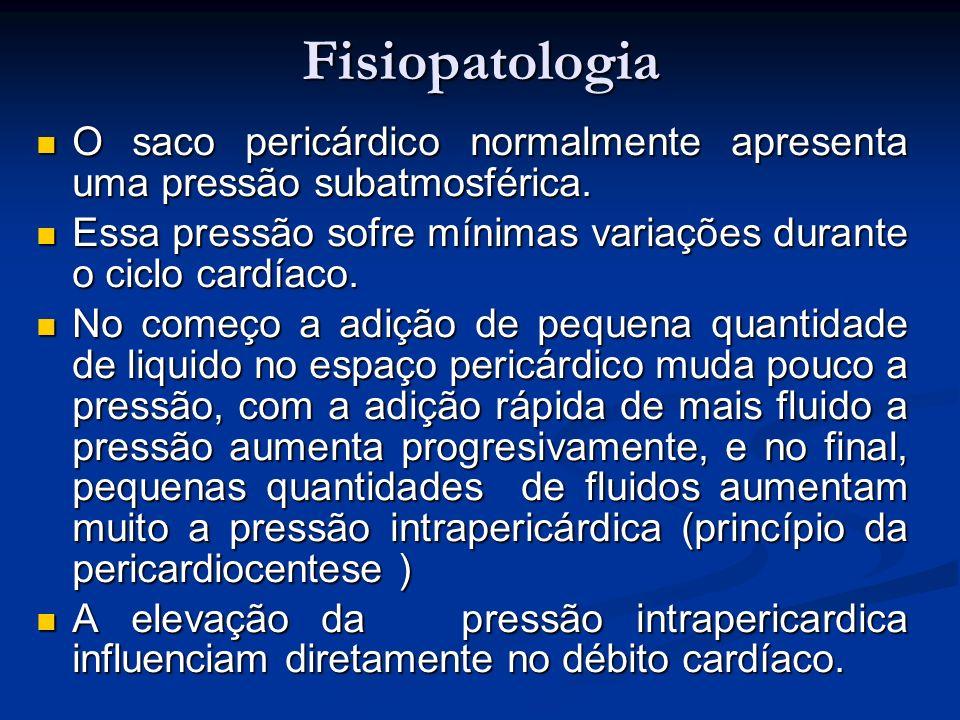 Fisiopatologia O saco pericárdico normalmente apresenta uma pressão subatmosférica. O saco pericárdico normalmente apresenta uma pressão subatmosféric