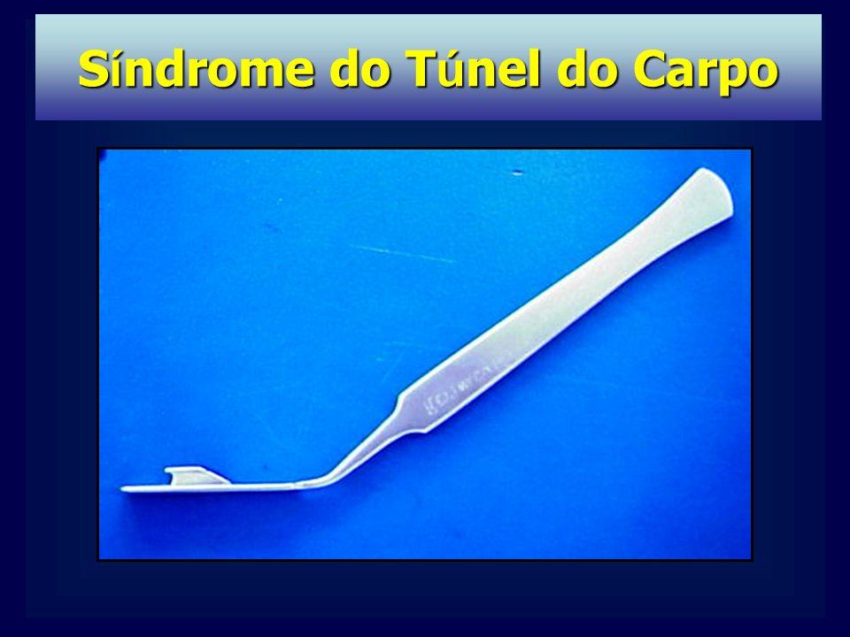TRATAMENTO: Tto. etiologia Imobilização Fisioterapia Infiltração Cirurgia S í ndrome do T ú nel do Carpo