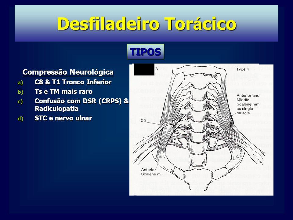 TIPOS Compressão Neurol ó gica a) C8 & T1 Tronco Inferior b) Ts e TM mais raro c) Confusão com DSR (CRPS) & Radiculopatia d) STC e nervo ulnar
