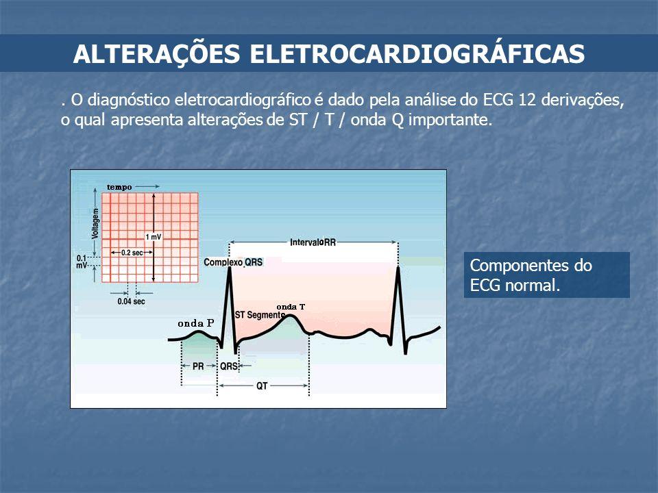 ALTERAÇÕES ELETROCARDIOGRÁFICAS. O diagnóstico eletrocardiográfico é dado pela análise do ECG 12 derivações, o qual apresenta alterações de ST / T / o