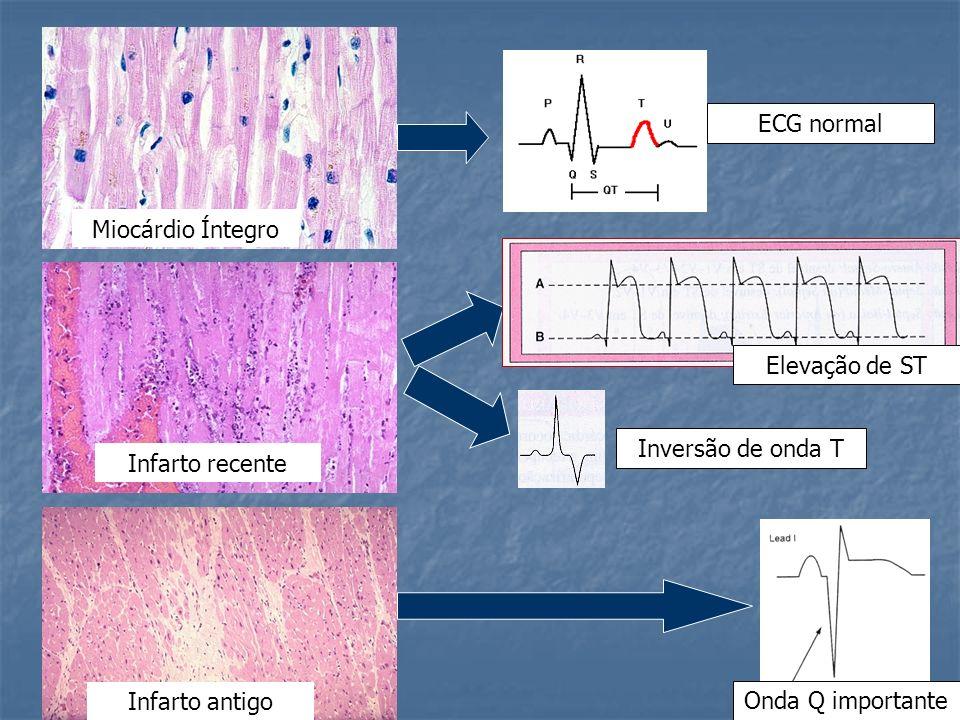 Miocárdio Íntegro Infarto recente Infarto antigo ECG normal Elevação de ST Onda Q importante Inversão de onda T