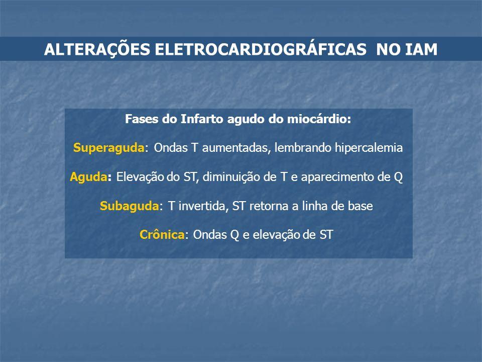 Fases do Infarto agudo do miocárdio: Superaguda: Ondas T aumentadas, lembrando hipercalemia Aguda: Elevação do ST, diminuição de T e aparecimento de Q
