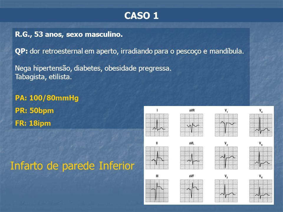 CASO 1 R.G., 53 anos, sexo masculino. QP: dor retroesternal em aperto, irradiando para o pescoço e mandíbula. Nega hipertensão, diabetes, obesidade pr