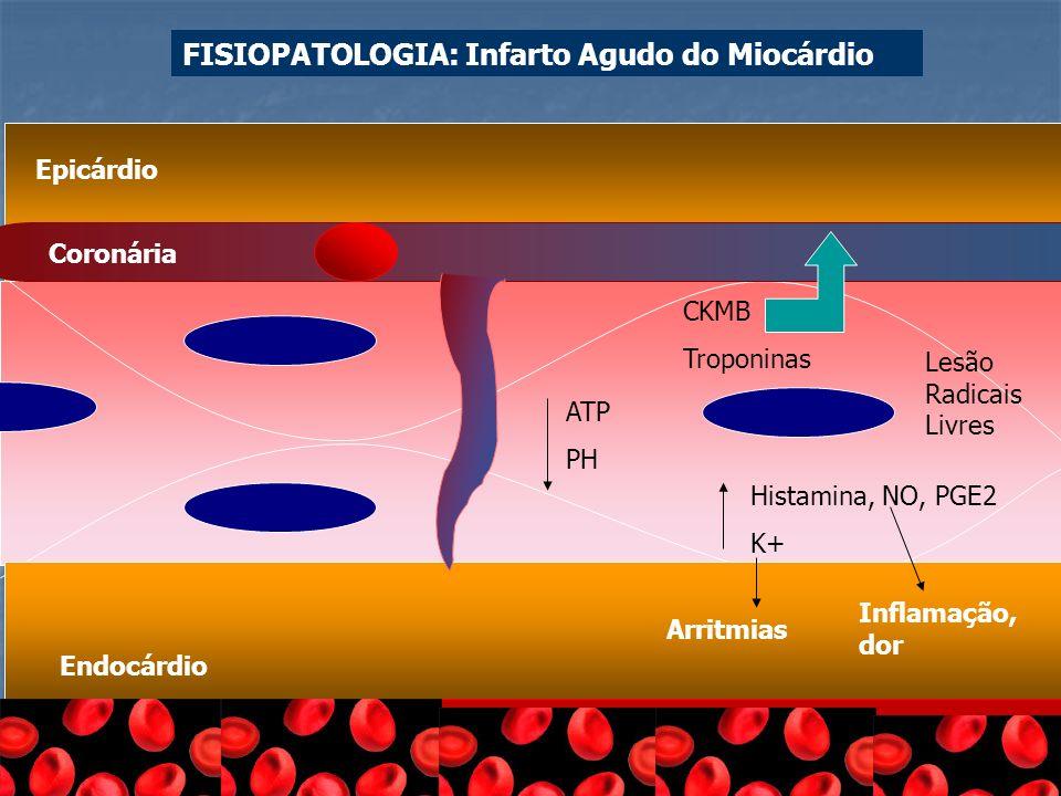 Epicárdio Endocárdio Coronária ATP PH CKMB Troponinas Histamina, NO, PGE2 K+ Arritmias Inflamação, dor Lesão Radicais Livres FISIOPATOLOGIA: Infarto A