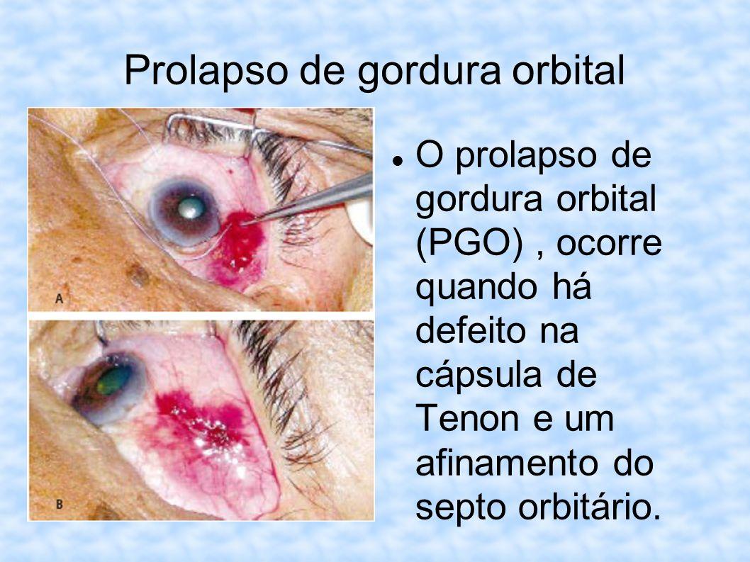 Prolapso de gordura orbital O prolapso de gordura orbital (PGO), ocorre quando há defeito na cápsula de Tenon e um afinamento do septo orbitário.